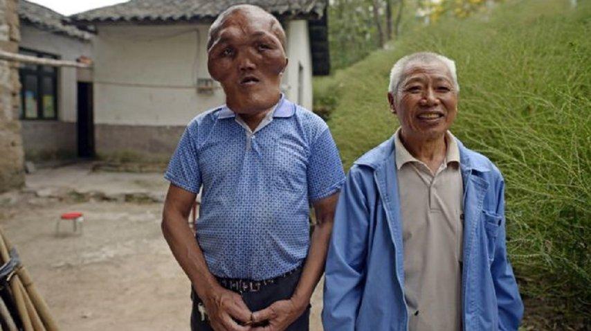 <div>Xia Yuanhai sufre hiperplasia facial</div>
