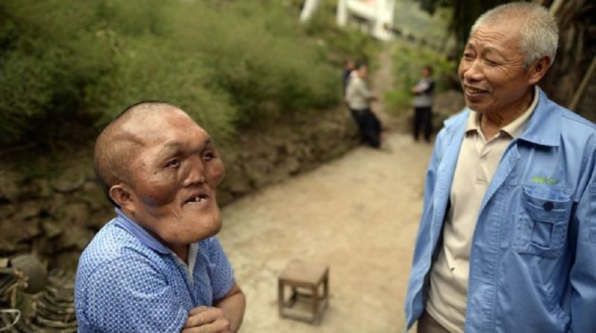 Xia Yuanhai sufre hiperplasia facial