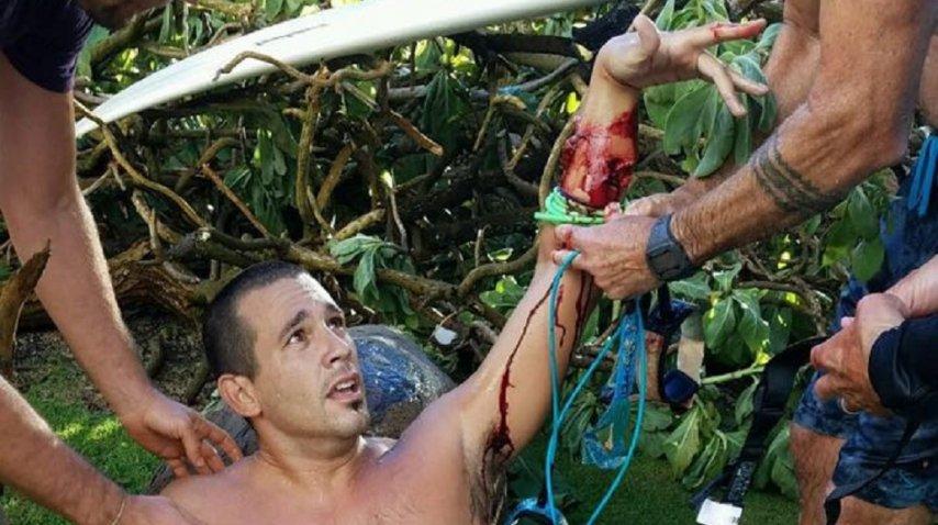 Argentino atacado por un tiburón en Hawái