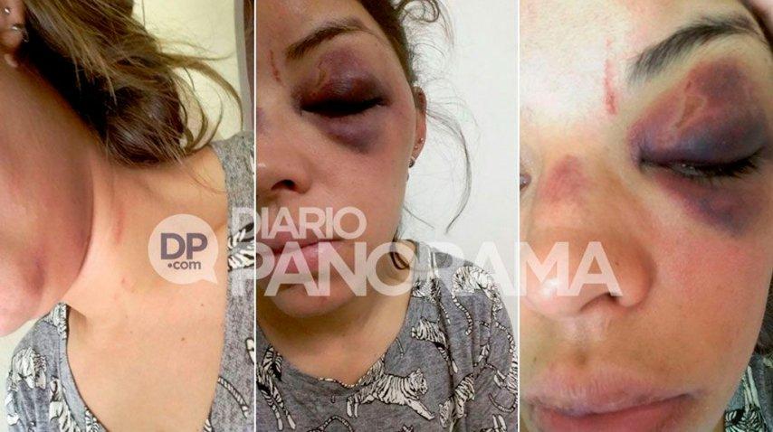 Florencia González de 28 años fue salvajemente golpeada por su ex.