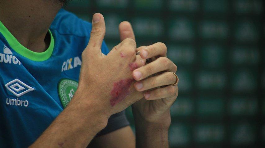 Las manos aún heridas de Hélio Zampier Neto