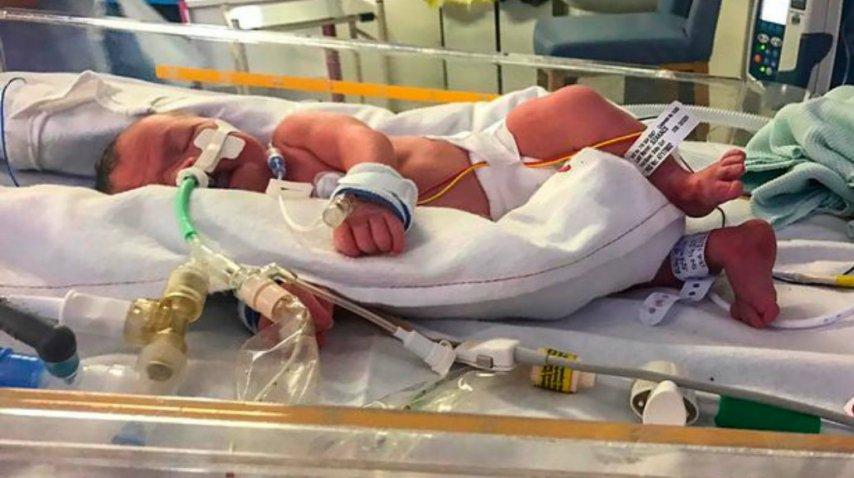Evlyn nació con severas complicaciones<br>