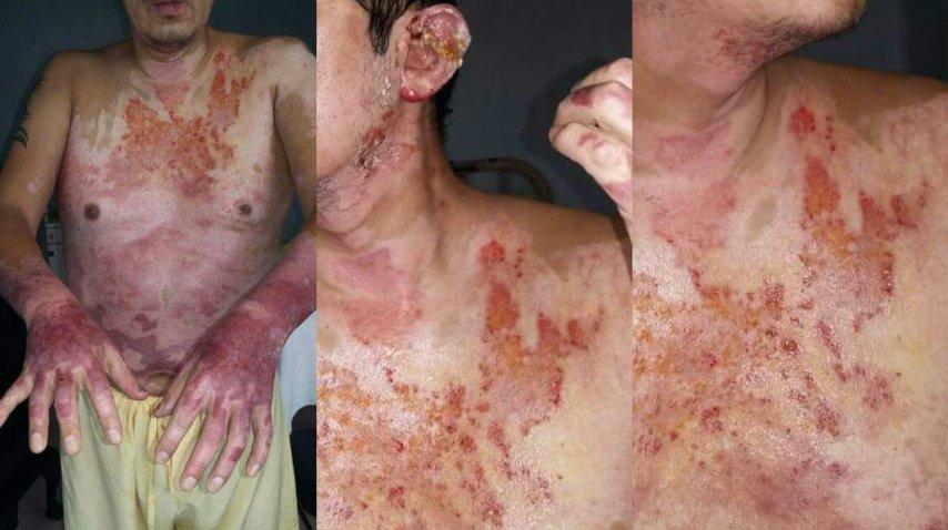 Su pareja lo roció con alcohol y lo quemó - Crédito: policialesdejujuy.com.ar