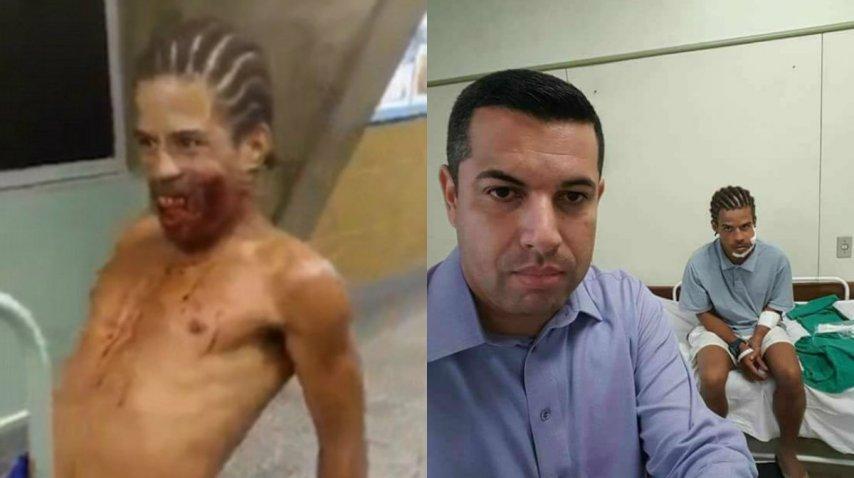 Antes y después del extraño caso en un hospital de Brasil<br>