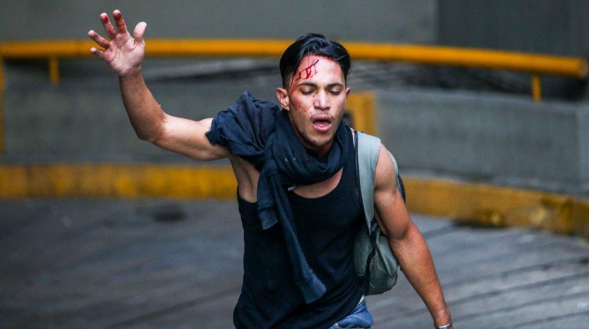 Un joven resultó herido en las protestas contra el gobierno de Nicolás Maduro<br>