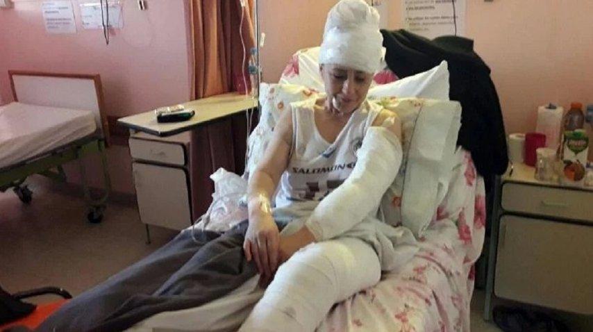 <p>Una jauría atacó a una mujer en Ushuaia - Crédito: TN </p><p></p>
