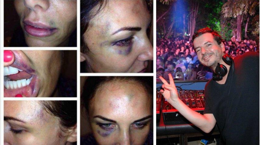 Abigail Blake y Betoko, el DJ que está condenado por golpeador de mujeres<br>